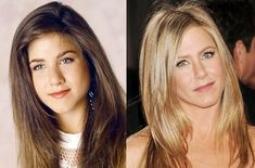 (25) Which Hollywood celebrities actually look good after plastic surgery? - Quora Jennifer Aniston Nose Job, Jennifer Aniston Plastic Surgery, Jenifer Aniston, Jennifer Aniston Style, Jennifer Lopez, Botox Before And After, Celebrities Before And After, Plastic Surgery Photos, Celebrity Plastic Surgery