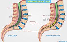 tethered spinal cord - Tethered Spinal Cord