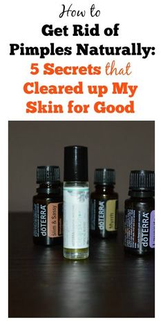 How to Get Rid of Pimples Naturally: 5 Secrets that Cleared up My Skin for Good