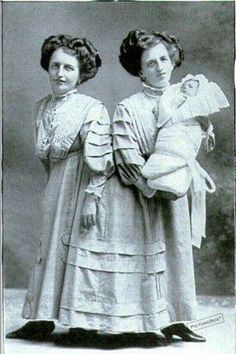 Conjoined twins Rosa and Josefa