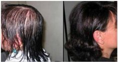 Despídete de la calvicie con este tratamiento totalmente natural, haz crecer tu cabello de forma rápida y abundante ademas de hermoso con esta receta!!! Stop Hair Loss, Prevent Hair Loss, Cabello Hair, Natural Hair Styles, Long Hair Styles, Hair Loss Treatment, Hair Repair, Tips Belleza, Fine Hair