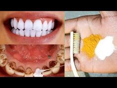 How to whiten teeth at home in 3 days and remove tartar and black teeth without going to the - YouTube Teeth Whitening Remedies, Natural Teeth Whitening, Teeth Tartar Removal, Teeth Whiting At Home, Make Teeth Whiter, Teeth Stain Remover, Glowing Skin Diet, Beautiful Teeth, Teeth Health