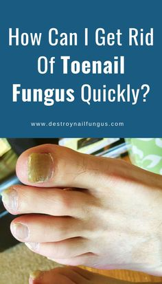 Toenail fungus is a fungal infection that occurs under your toenail tip. It sta. Fingernail Fungus, Nail Fungus Laser, Thick Toenails, Foot Remedies, Natural Remedies, Toenail Fungus Remedies, Toe Fungus, Diy Pedicure, Fungi