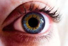 Image result for central heterochromia blue green
