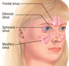 Relieve Sinus Pressure Instantly   Home Remedies - Budget101.com
