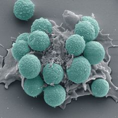 White blood cells engulfing spores of Aspergillus fumigatus. Coloured SEM.