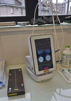 Laserul dioda Wiser este atat de bland incat utilizarea anestezicelor nu mai este intotdeauna necesara.
