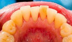 Como Eliminar La Placa Sin Ir A Un Dentista