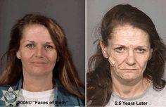 Faces of Meth: the long-term effects of crystal meth or methamphetamine
