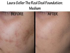 Before & After Pics for over 25 Foundations!