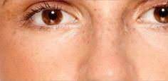 Comment atténuer ou éliminer les taches sur le visage. Ce mélange permet de blanchir la peau : versez dans un récipient deux cuillerées de lait en poudre, puis ajoutez-y trois gouttes d'eau oxygénée de vol.20, et deux gouttes de glycérine. Mélangez, et appliquez sur votre visage une fois par jour