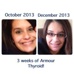 Thyroid Problems After Car Accident