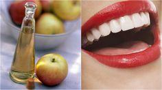 Hľadáte jednoduchý spôsob, ako získať žiarivejší úsmev bez poškodenia zubnej skloviny? Táto metóda vám nielen vybieli zuby, ale poradí si aj s problémami v ústnej dutine. Food And Drink, Health Fitness, Lipstick, Apple, Cosmetics, Fruit, Drinks, Beauty, Tips