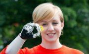 UK woman can ride bike for first time with 'world's most lifelike bionic hand'