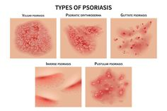 Inverse Psoriasis, Types Of Psoriasis, Nail Psoriasis, Psoriasis Symptoms, Psoriasis Arthritis, Plaque Psoriasis, Types Of Skin Rashes, Psoriasis Remedies, Immune System Diseases