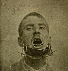 Apparatus to mend a broken jaw, from Karl Witzel's Chirurgie und Prothetik bei Kiefererkrankungen, 1905- Ouch!