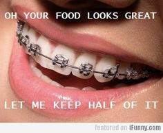 Don't forget to keep a brush, toothpaste, and floss with you for when your braces decide to keep half your meal! #braceshumor Braces Humor, Dental Humor, Braces Problems, Cute Braces Colors, Braces Tips, Getting Braces, Orthodontic Appliances, Dental Braces, Dental Care