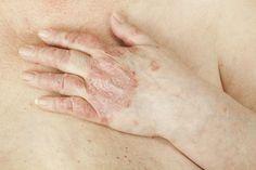 La psoriasis es una enfermedad en la piel, la cual causa inflamación y descamación. Se presenta también con dolor, calentamiento y coloración.