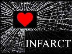 Myocardial Infarction, Forensics, Movie Posters, Movies, Films, Film Poster, Cinema, Movie, Film
