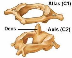A diagram depicting the Atlas and Axis vertebra of the spine. Vértebra Cervical, Cervical Vertebrae, Human Skeleton Anatomy, Human Anatomy, Body Anatomy, Brain Anatomy, Anatomy Bones, Psoas Release, Biology