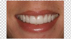 Devon works in a medical office where she sees a lot of people.  She had extensive dental decays and stains.  Her goal was to fix eight of her upper front teeth so she would not be mortified to face patients at her job.  Her treatment plan included gum recontouring, root canal therapy, porcelain veneers and crowns. Just Beautiful!!!!http://www.rankipedia.com/dentist/dentistprofile/id/28107