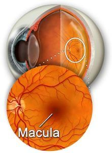 amd øjensygdom