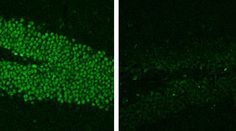 MeCP2, a gene associated with neurodevelopmental conditions such as Rett syndrome and autism, has an unexpectedly essential role in mature brains.