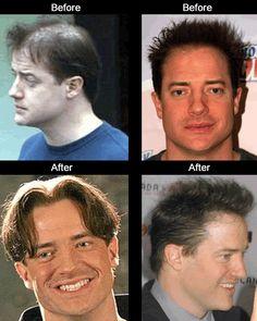 Brendan Fraser Hair Transplant - Celebrity hair transplants before and after