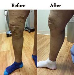 If you looking for the best #Spider_Veins treatment in Oak Brook. then go to #Charming_Skin & Vein clinics provides the best Spider Veins treatment in #Chicago, #Oak_Brook. For booking an appointment call us 630-974-1400 now or click away.