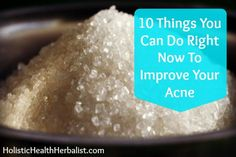 10 Things You Can Do Right Now To Improve Your Acne...this is by far the best article I've read!