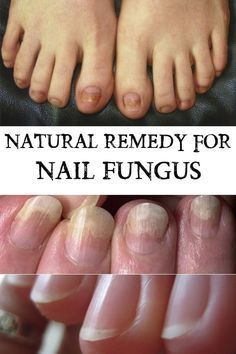 Natural Remedy for Nail Fungus - Crazy Beauty Tricks