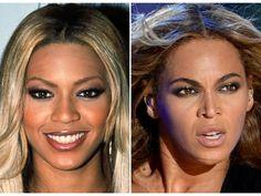 Las 10 celebrities mejor operadas, ¡descubre el antes y después!