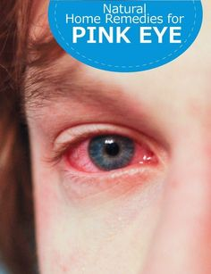 Natural Home Remedies for Pink Eye | Pin Remedies