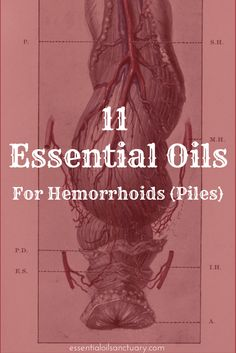 11 Essential Oils for Hemorrhoids (Piles) Plus Recipes & Application Tips