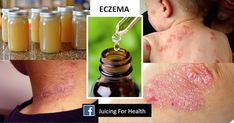 Eczema is a skin condition that can lead to blisters and irritation along with patches of skin. It is not incurable and I have seen many cases where eczema has been reversed.