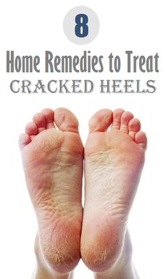 Top 8 Home Remedies to Treat Cracked Heels