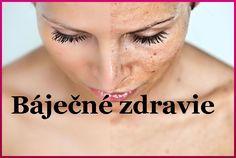 Skin Clinic, Uneven Skin Tone, Dull Skin, Freckles