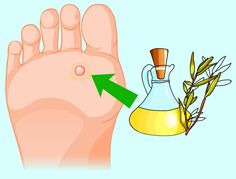 Herbs+: How To Remove Annoying Papillomas And Warts Once F. Fig Juice, Aloe, Garlic Pills, Pure Castor Oil, Natural Exfoliant, Warts, Cotton Pads, Tea Tree Oil, Skin Problems