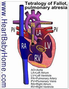 Heart defect: Tetralogy of Fallot (ventricle septal defect, enlarged aorta, pulmonary stenosis, right ventricular hypertrophy) with pulmonary atresia and pulmonary artery hypoplasia.