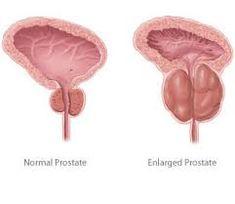 las mejores maneras de mantener una próstata sanada