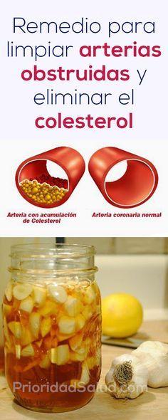 Remedio para limpiar arterias obstruidas, eliminar el colesterol alto y trigliceridos altos de la sangre