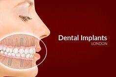 Sedation Dentistry to Deal with Dental Implants