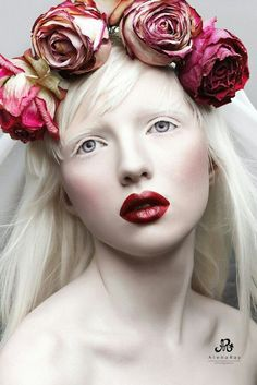 Nastya Zhidkova - a beautiful, rare albino