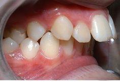 Niềng răng mắc cài kim loại là kỹ thuật đầu tiên được dùng trong thủ thuật chỉnh nha, mắc cài được làm bằng vàng, bạc hay thép không gỉ đi cùng với dây cung cao su đàn hồi giữ khung và định hình cấu trúc hàm.