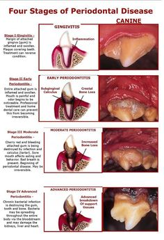 Four Stages of Periodontal Disease - Have your pet's mouth checked by a veterinarian 1-2 times per year to prevent dental disease from developing