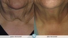 AntiAging Before & After