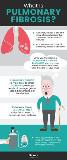 48 Best Idiopathic Pulmonary Fibrosis images in 2016 | Idiopathic