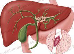The Radiology Assistant : Biliary duct pathology Liver Bile, Liver Disease, Fatty Liver, Caroli Disease, Medullary Sponge Kidney, Portal Hypertension, Liver Detox Cleanse, Bile Duct, Ulcerative Colitis