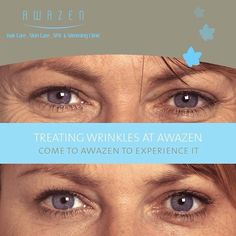 Trade the wrinkles in for a younger and softer look at Awazen. Just call +971 2 4411944 to book your appt.