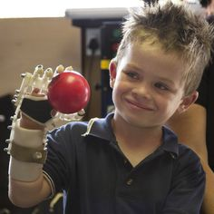 3D-printed Robohand helps children  born without fingers